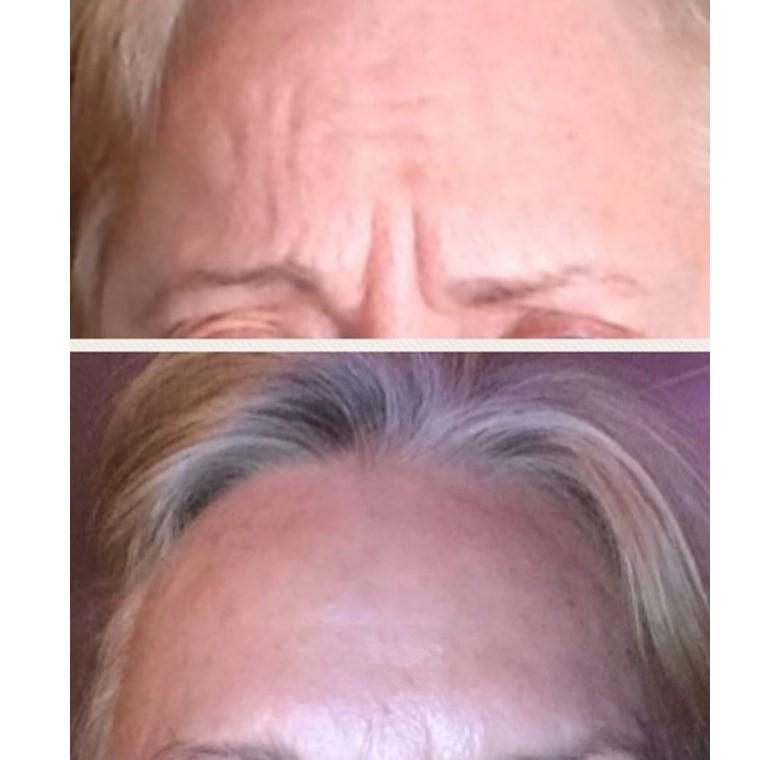 botox anti wrinkle cosmetic injection dermal fillers noosa woman luxe skin co