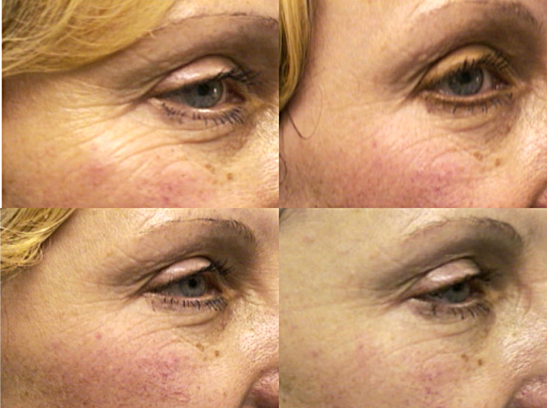 Omnilux Noosa the luxe skin co anti wrinkle botox dermal filler cosmetic injectable skin treatment